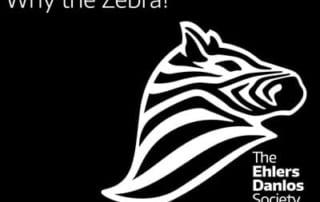 EDS Zebra: Bringing awareness to individuals with EDS